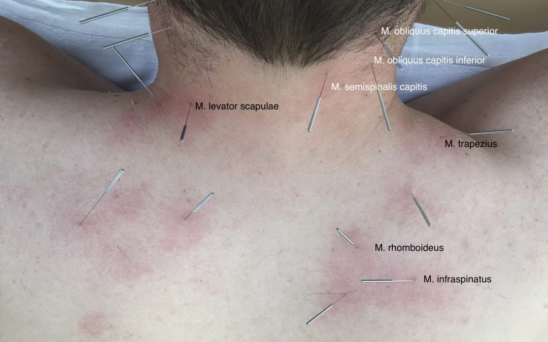 Acupuncture for the prevention of episodic migraine